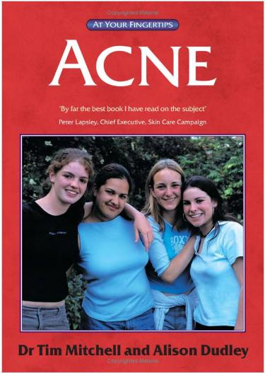 Acne: The 'At Your Fingertips' Guide