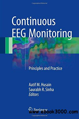 Continuous EEG Monitoring: Principles and Practice